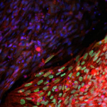 Induced pluripotent stem cells stained for the transcription factor Oct4 (Teisha Rowland).