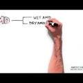 Embedded thumbnail for White Board Video : Age Related Macular Degeneration