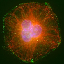 Kidney cell stained for tubulin (red), phospho-STAT3 (green) and DNA (blue)